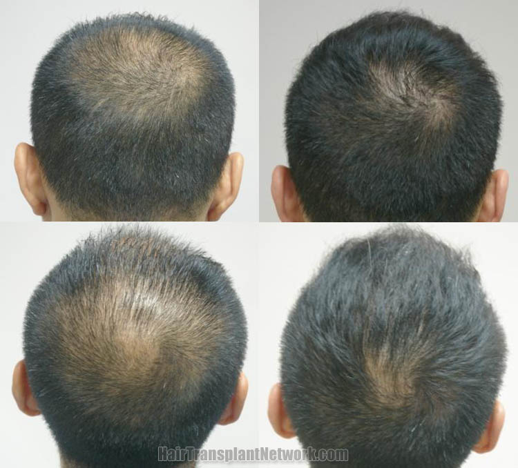 hair-restoration-surgery-images-back-165835