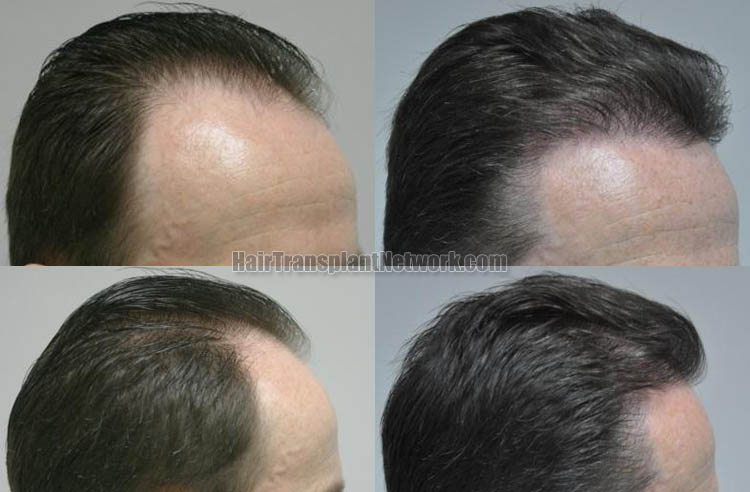 hair-restoration-surgery-images-right-168056