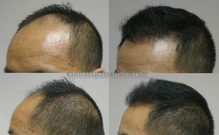 hair-restoration-surgery-left-165835
