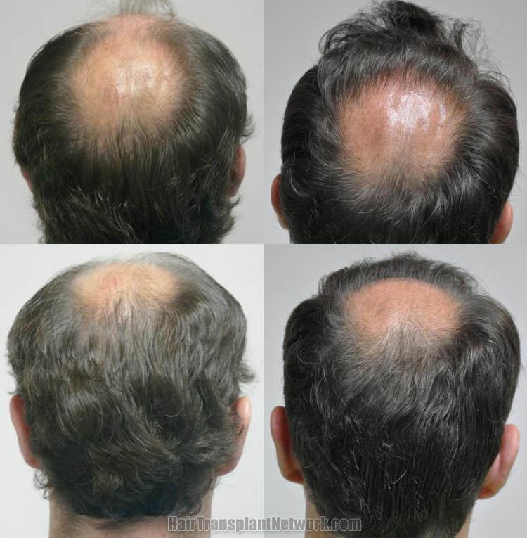 hair-restoration-surgery-photo-back-165454