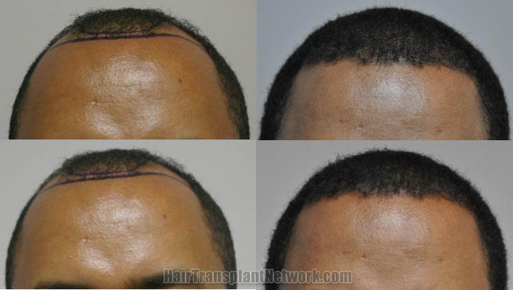 hair-restoration-surgery-photo-front-166931
