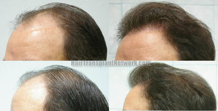 hair-restoration-surgery-photo-left-158882