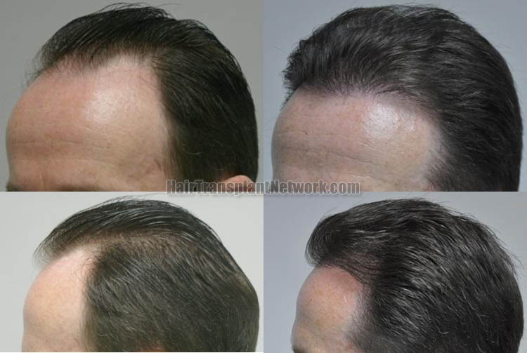 hair-restoration-surgery-photo-left-168056