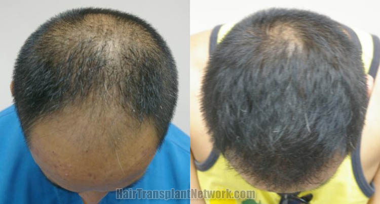 hair-restoration-surgery-photo-top-165835
