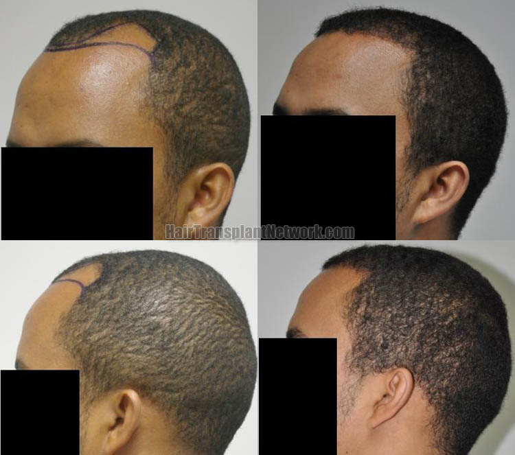 hair-restoration-surgery-photos-left-166931