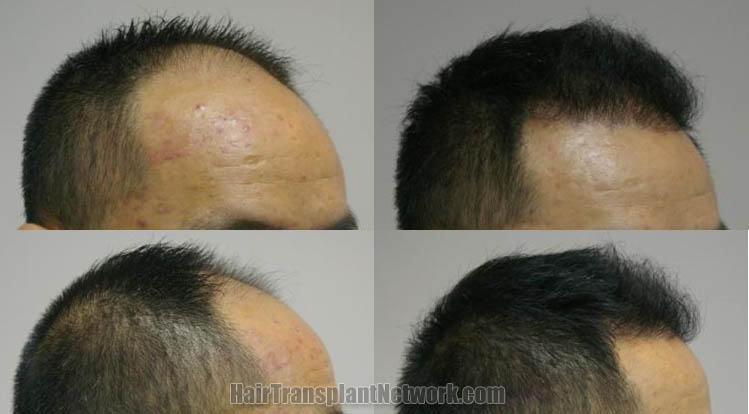 hair-restoration-surgery-photos-right-165835
