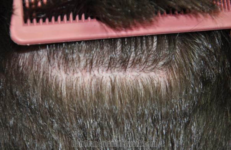 hair-restoration-surgery-photos-scar-168056