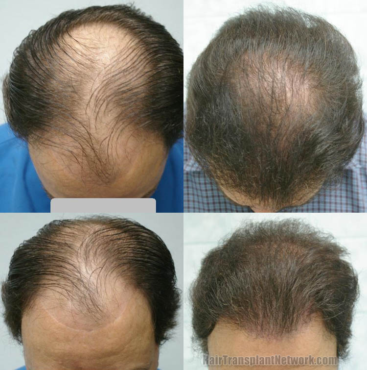 hair-restoration-surgery-photos-top-158882