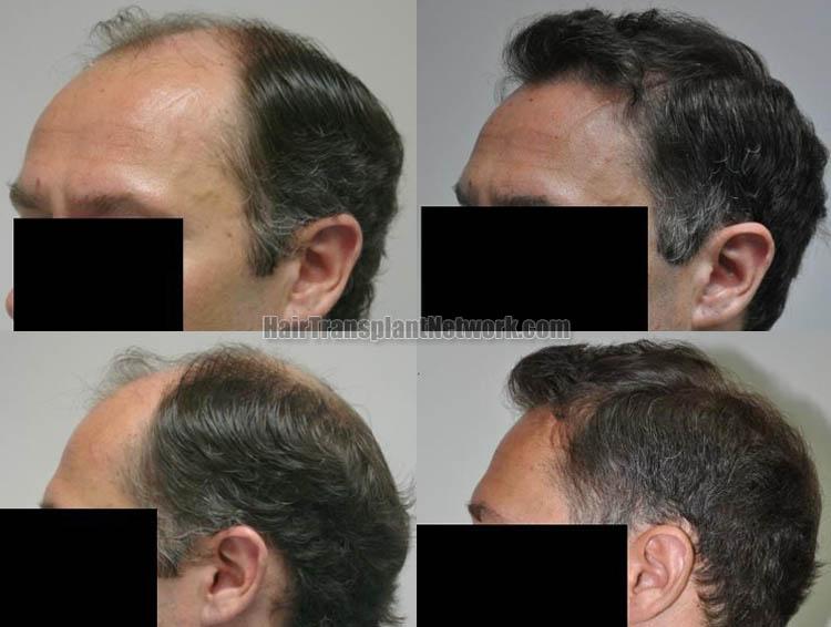 hair-restoration-surgery-picture-left-165454