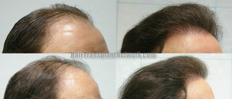 hair-restoration-surgery-picture-right-158882