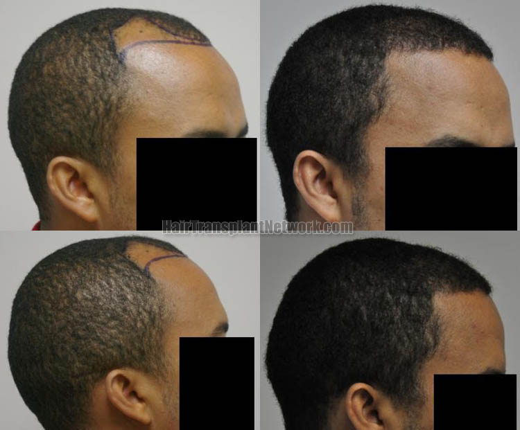 hair-restoration-surgery-picture-right-166931