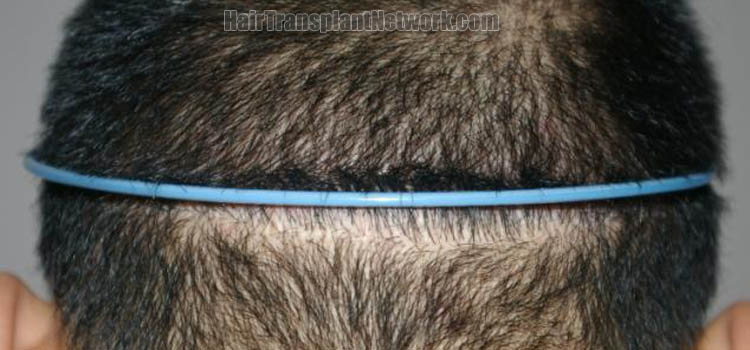 hair-restoration-surgery-picture-scar-165835