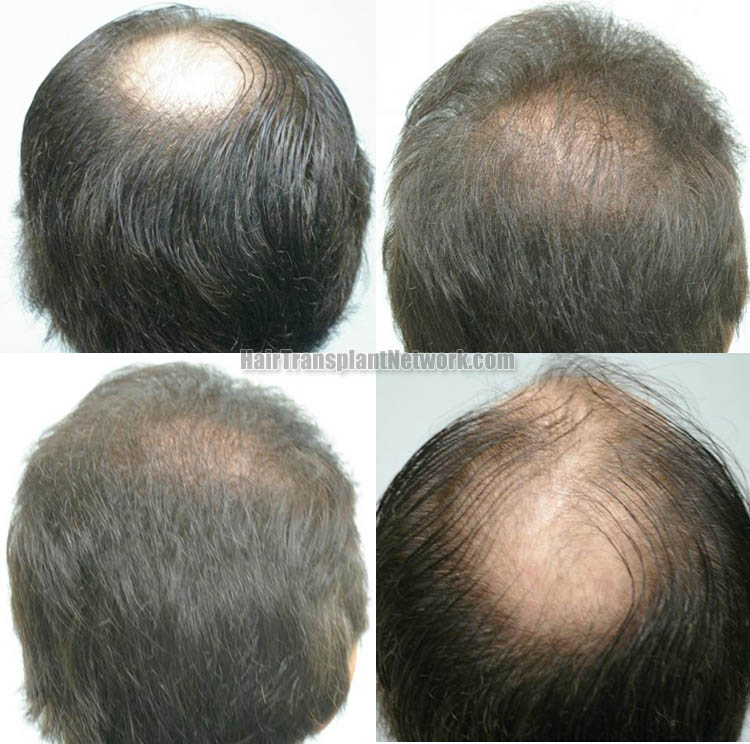 hair-restoration-surgery-pictures-back-158882