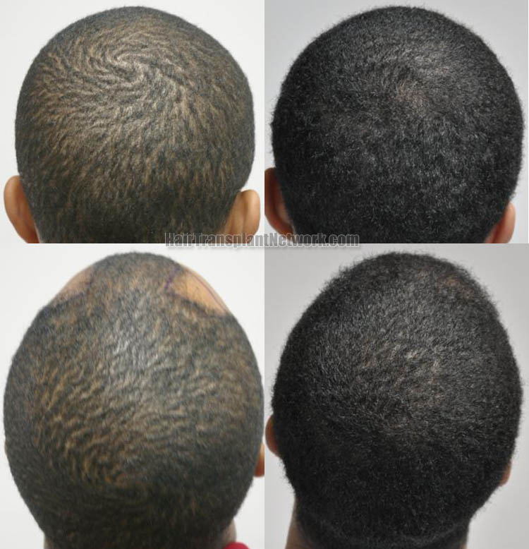 hair-restoration-surgery-pictures-back-166931