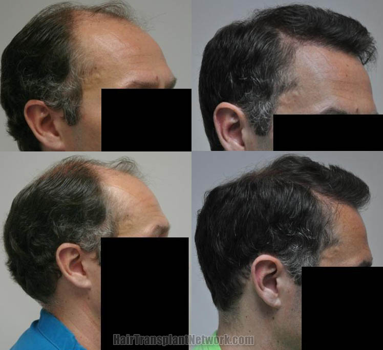 hair-restoration-surgery-pictures-right-165454