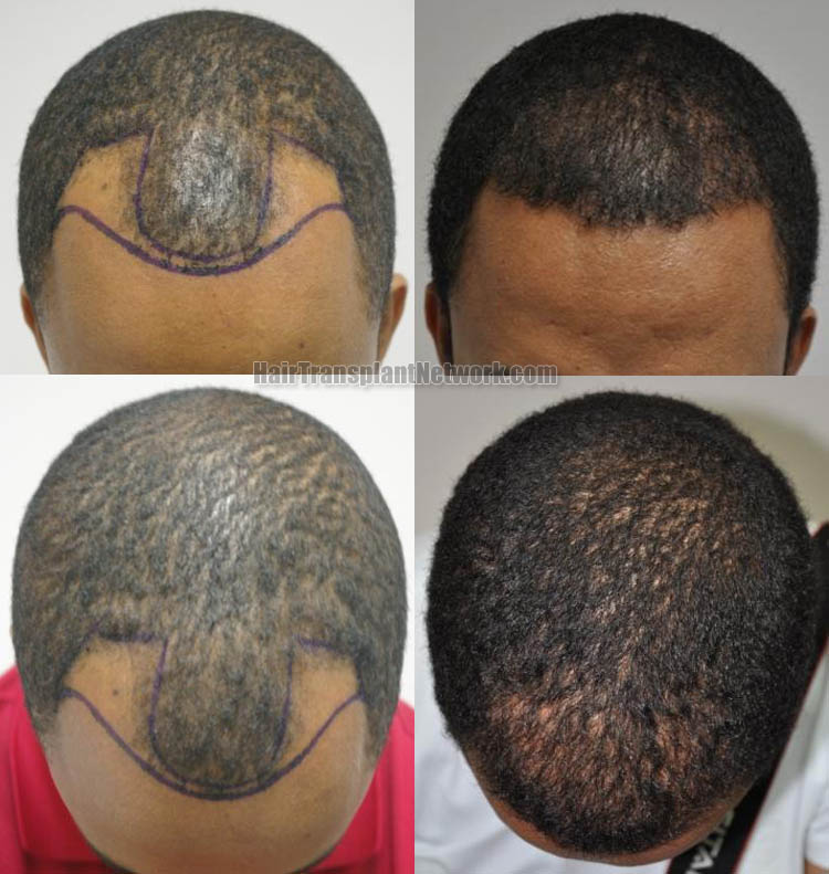hair-restoration-surgery-top-166931