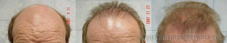 hair-restoration-surgical-photos-front-157207