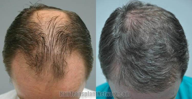 hair-restoration-top-166599