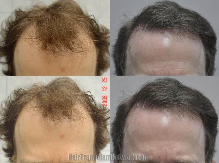 hair-transplant-image-front-168396