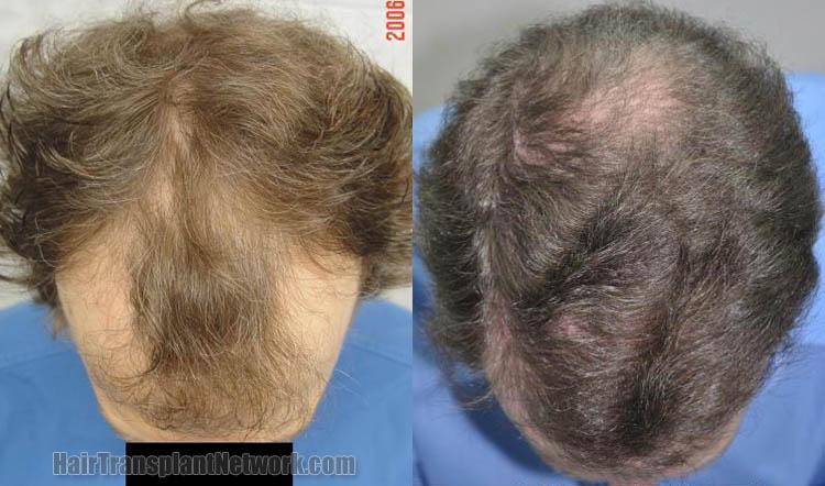 hair-transplant-image-top-168396