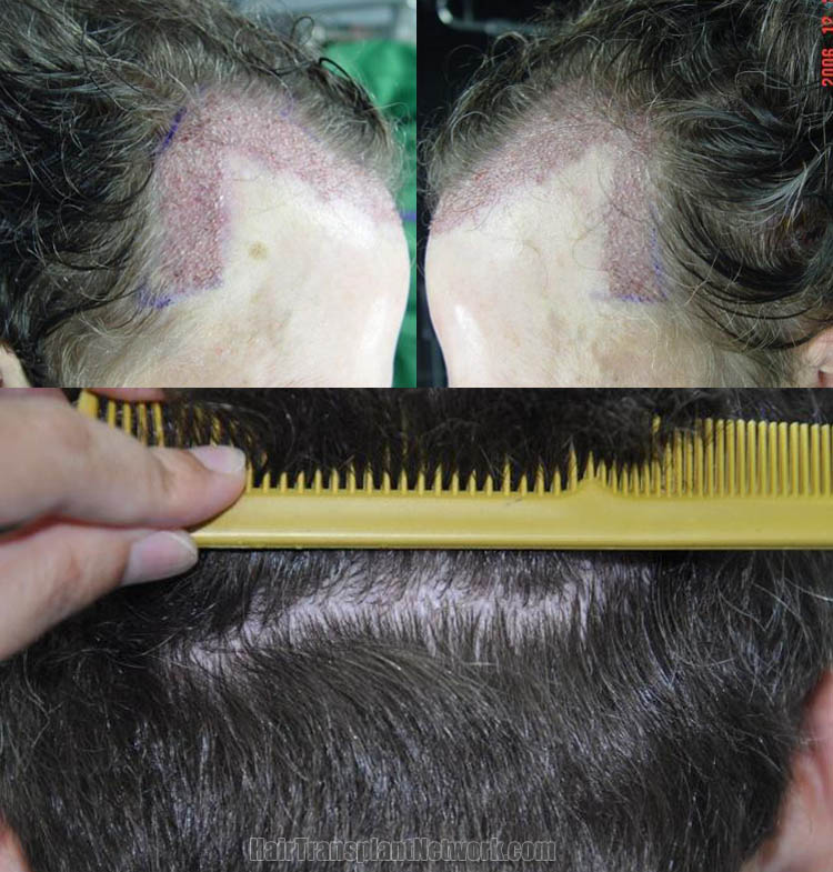 hair-transplant-images-impo-scar-168396