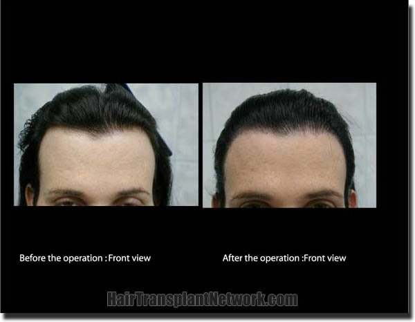 hair-transplant-pathomvanich-2572-before-and-after-front