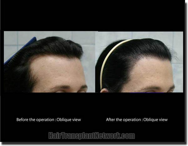 hair-transplant-pathomvanich-2572-before-and-after-right-oblique