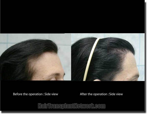 hair-transplant-pathomvanich-2572-before-and-after-right