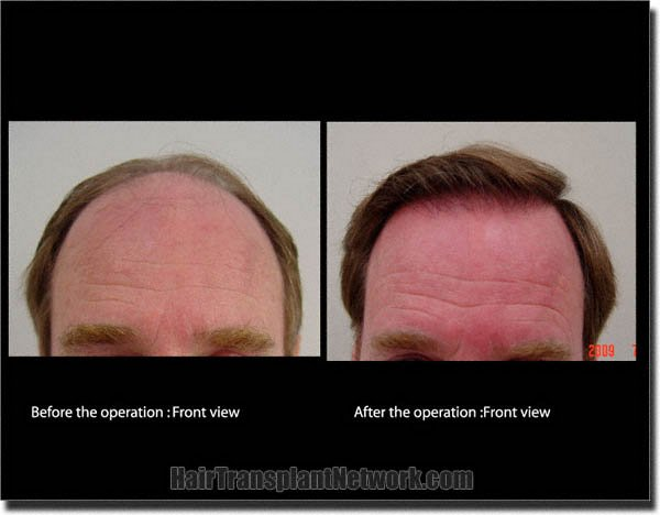 hair-transplant-pathomvanich-3339-before-and-after-front