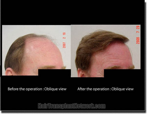 hair-transplant-pathomvanich-3339-before-and-after-right-oblique
