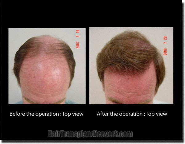 hair-transplant-pathomvanich-3339-before-and-after-top
