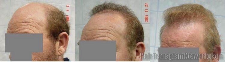 hair-transplant-photo-left-157207