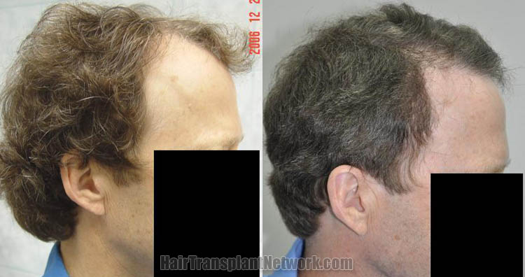 hair-transplant-photo-right-168396