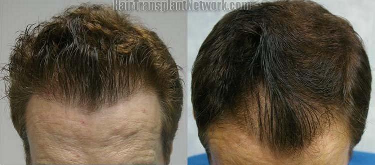 hair-transplant-photo-tilt-160152