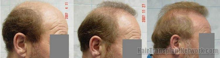 hair-transplant-photos-right-157207