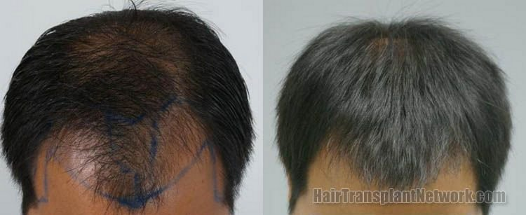 hair-transplant-photos-top-156838