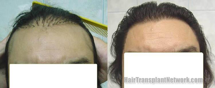 hair-transplant-plug-repair-front-158264