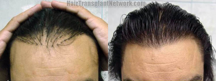hair-transplant-plug-repair-photos-tilt-158264