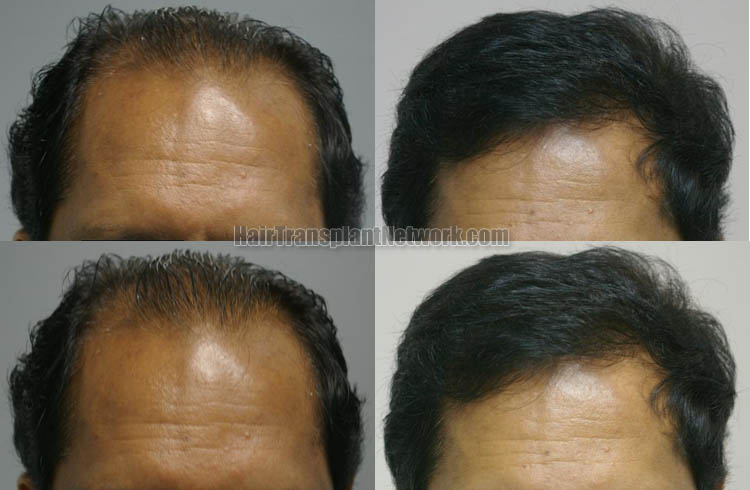 hair-transplant-surgery-photo-front-162443
