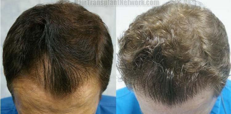 hair-transplant-top-160152
