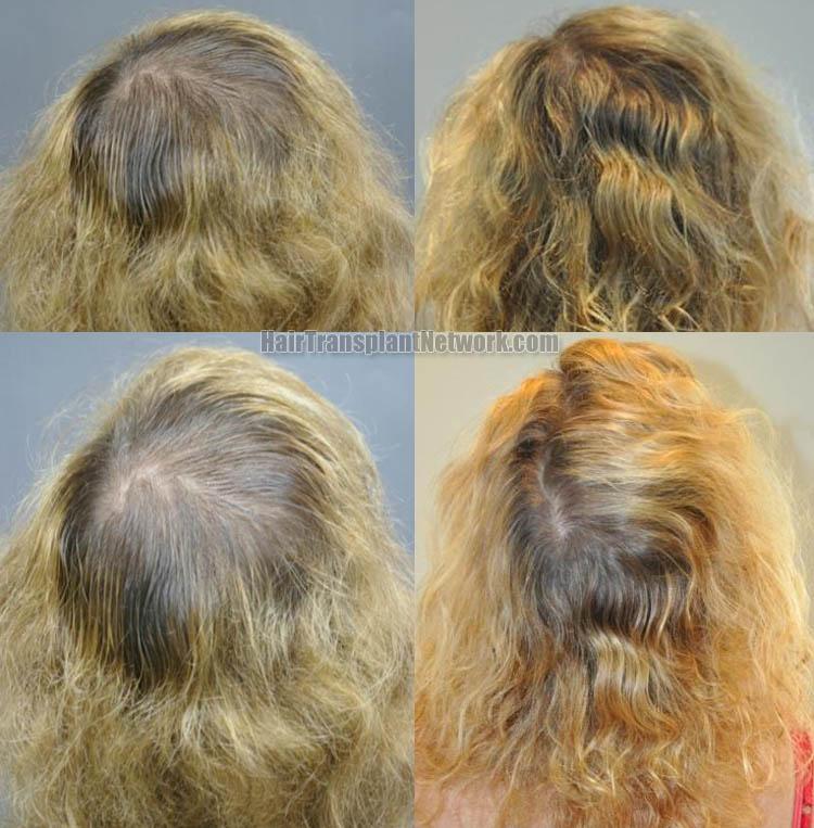 hair-transplantation-back-164750
