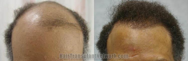 hair-transplantation-front-166197