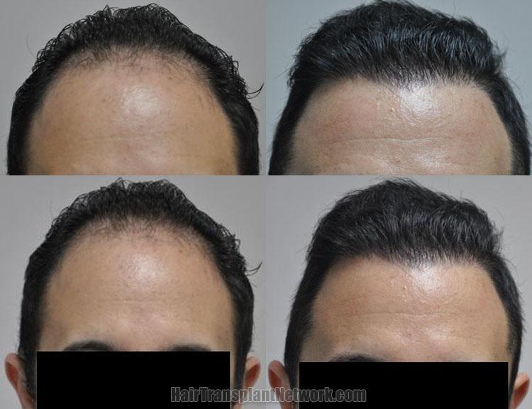 hair-transplantation-front-168719