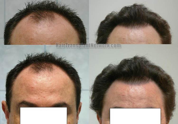 hair-transplantation-image-front-163192