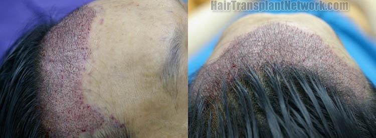 hair-transplantation-image-im-po-164349