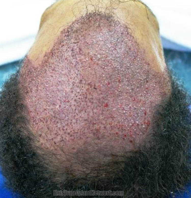 hair-transplantation-image-impo-166197