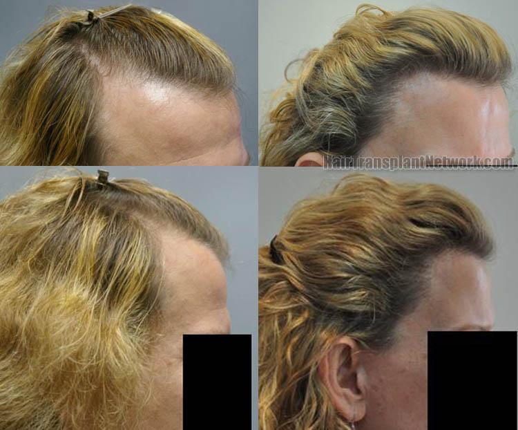hair-transplantation-image-right-164750