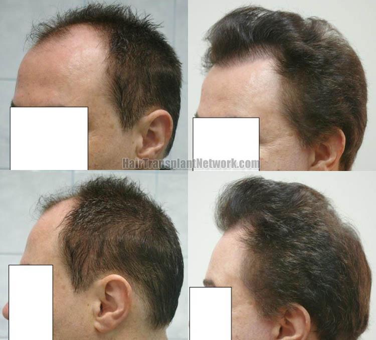 hair-transplantation-images-left-163192
