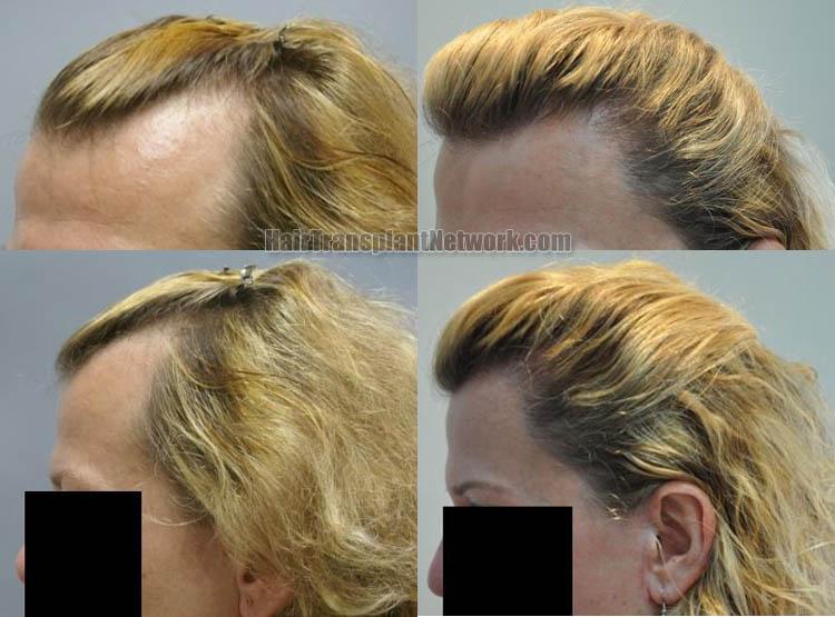 hair-transplantation-images-left-164750