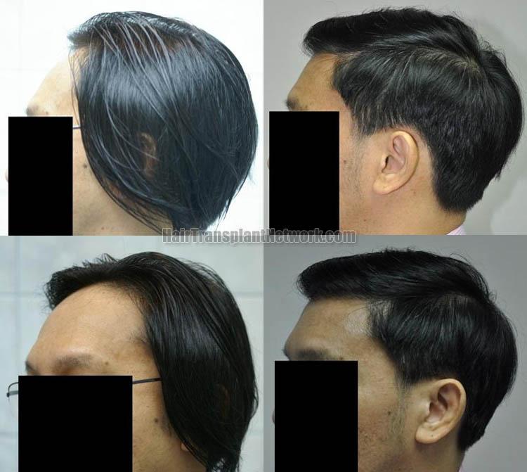 hair-transplantation-left-164349
